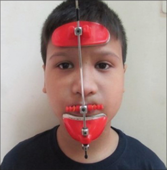Figure 4: Facemask for maxillary protraction